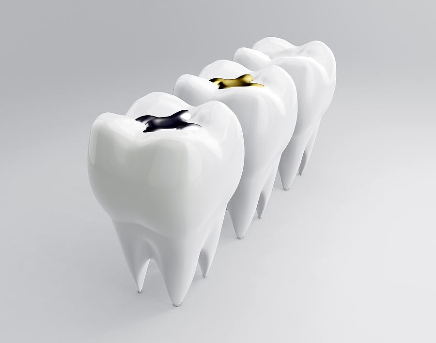 Zahnfüllungen